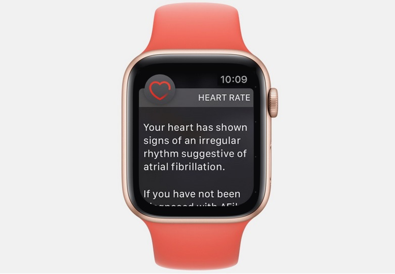 Un reloj Apple Watch con una notificación fibrilación auricular