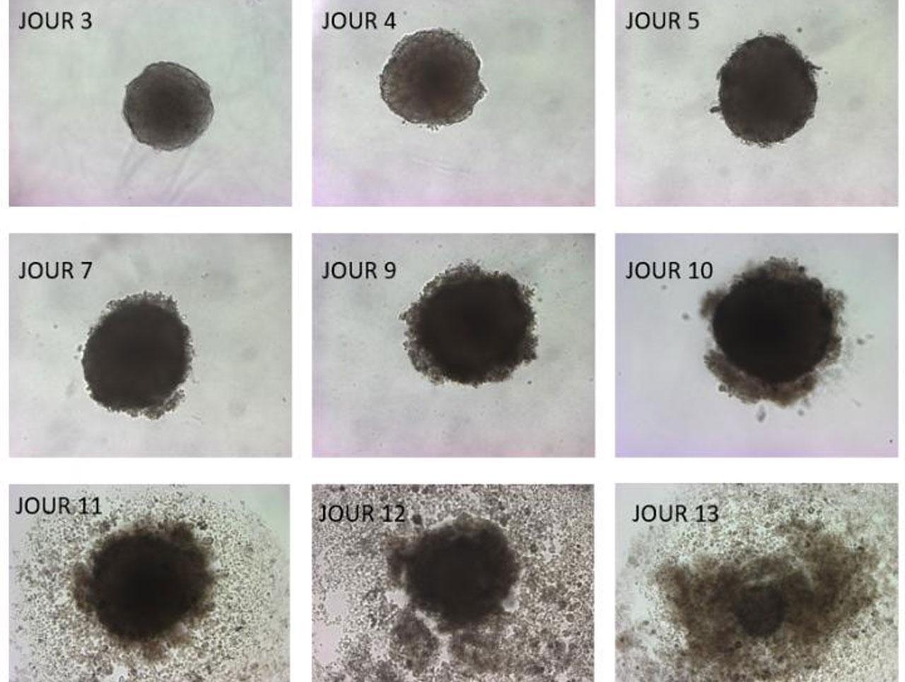 Un estudio descubre cómo los ácidos grasos omega-3 ralentizan el crecimiento de los tumores